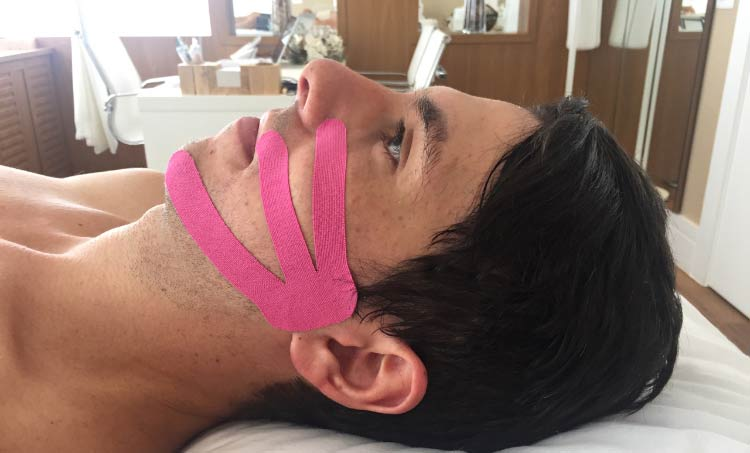 miotaping-tratamento